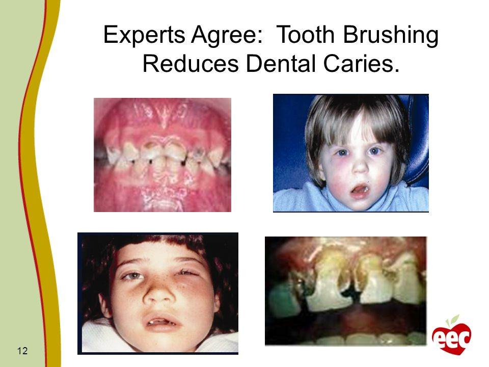 Experts Agree: Tooth Brushing Reduces Dental Caries.