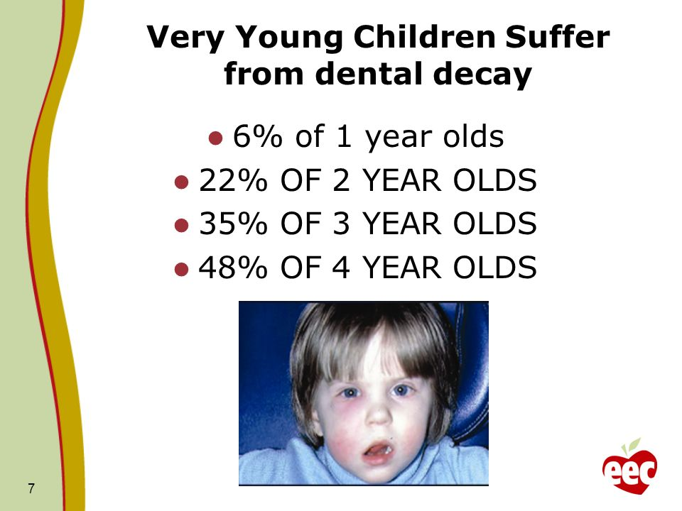 Very Young Children Suffer from dental decay