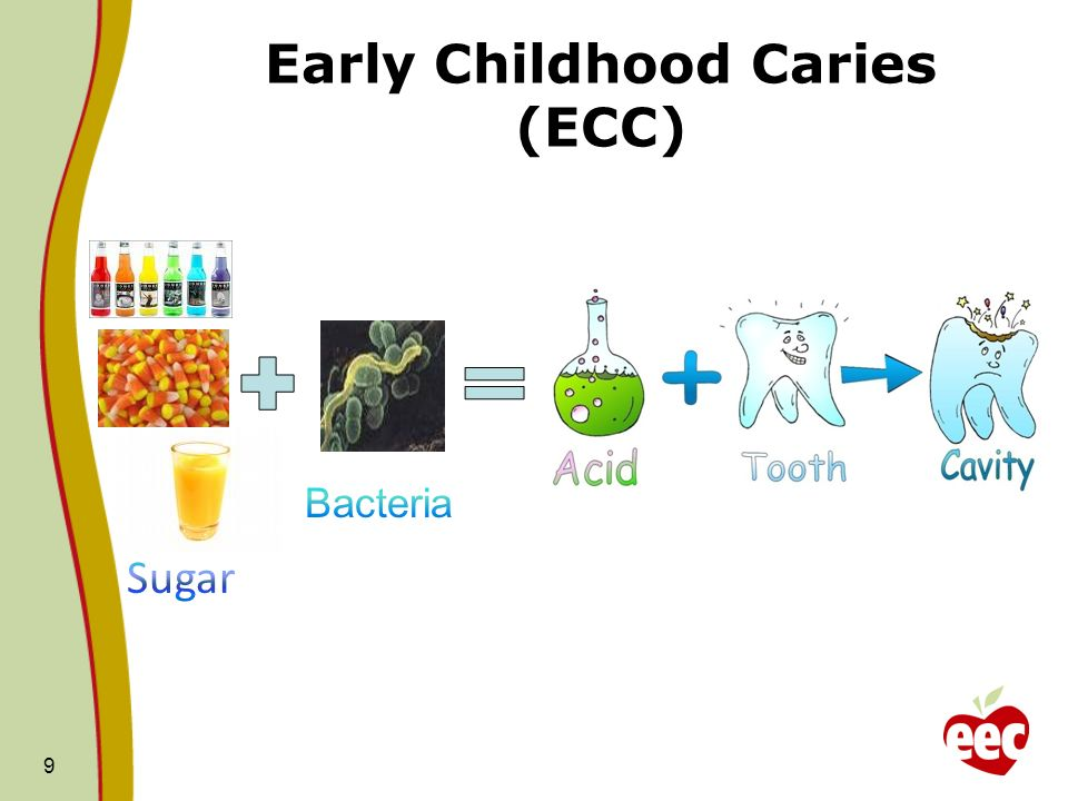 Early Childhood Caries (ECC)