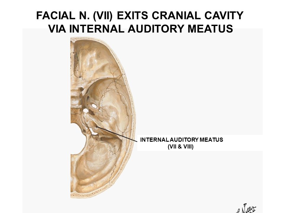 Internal Auditory Meatus Facial Nerve