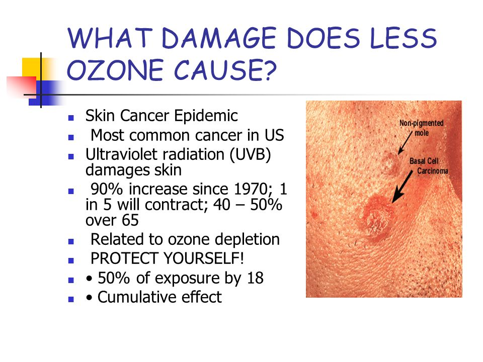 WHAT DAMAGE DOES LESS OZONE CAUSE