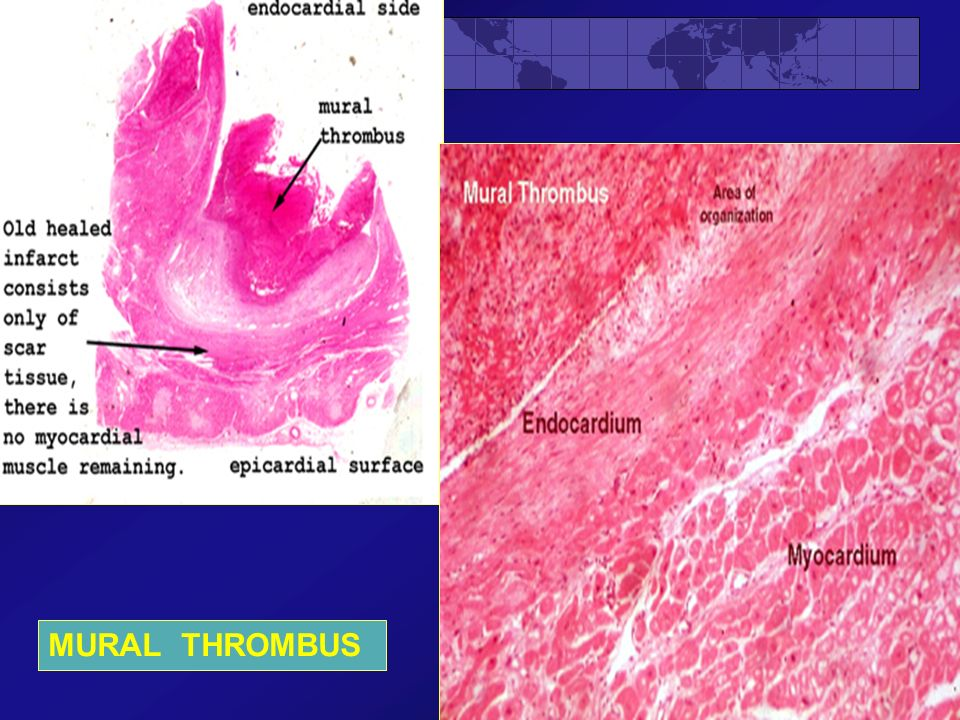 Fluid and hemodynamic derangements part ii ppt video for Mural thrombi