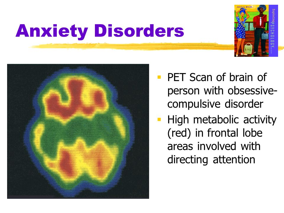 Anxiety Disorders PET Scan of brain of person with obsessive- compulsive disorder.