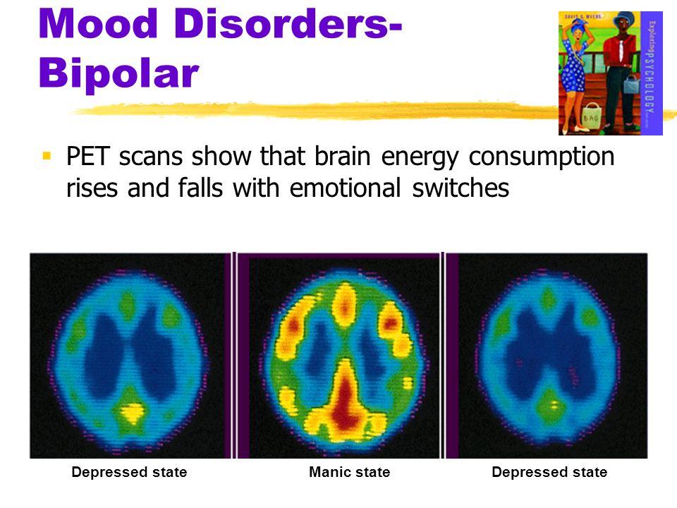 Mood Disorders-Bipolar