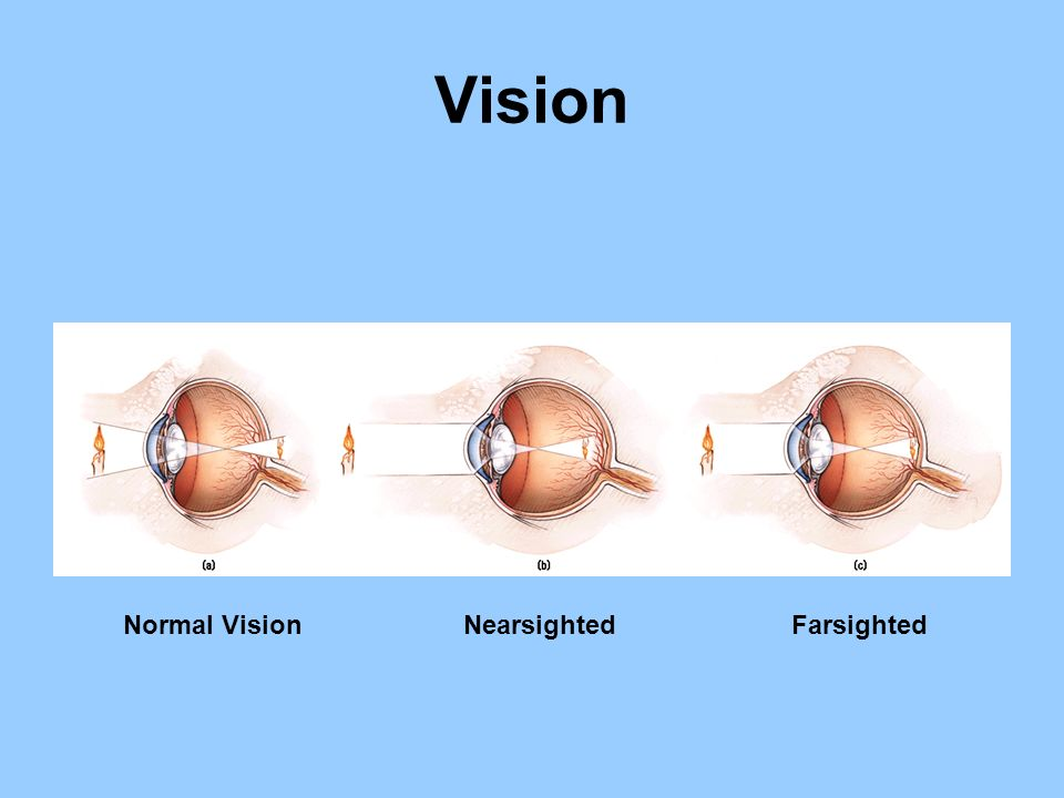 Vision Normal Vision Nearsighted Farsighted