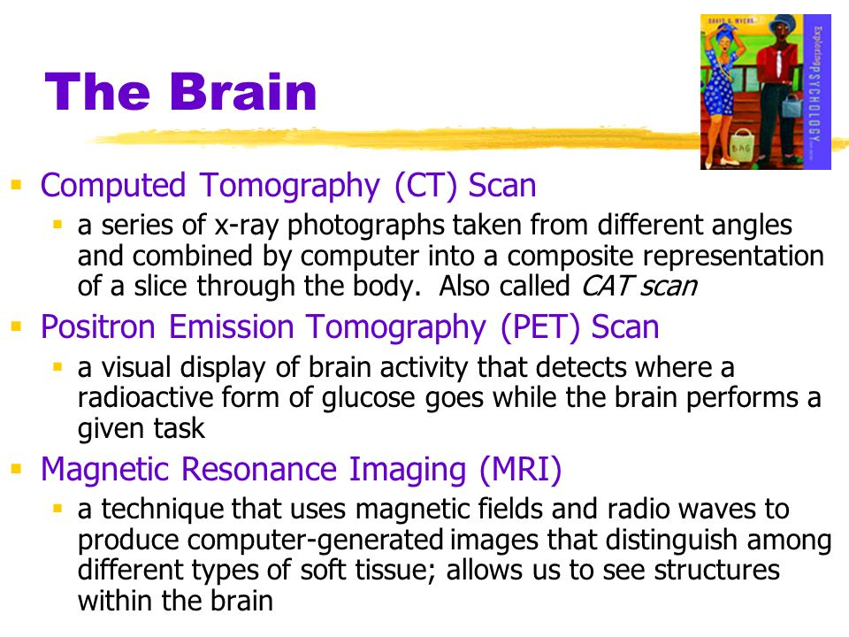 The Brain Computed Tomography (CT) Scan