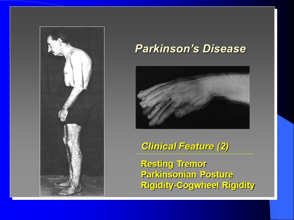Parkinsons disease rigidity video download