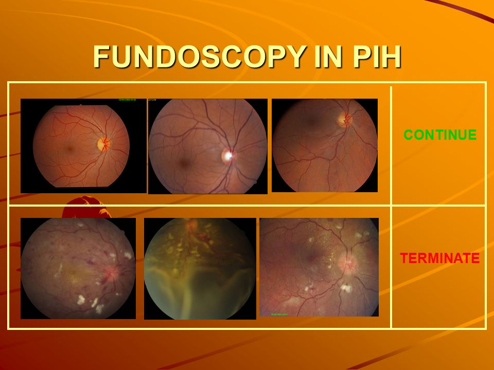 Fundoscopy In Pih Continue Terminate likewise Resume Cv Design likewise Facilities Management Cleaning Services likewise Giant Ionic Structures also Preview. on hard and soft skills