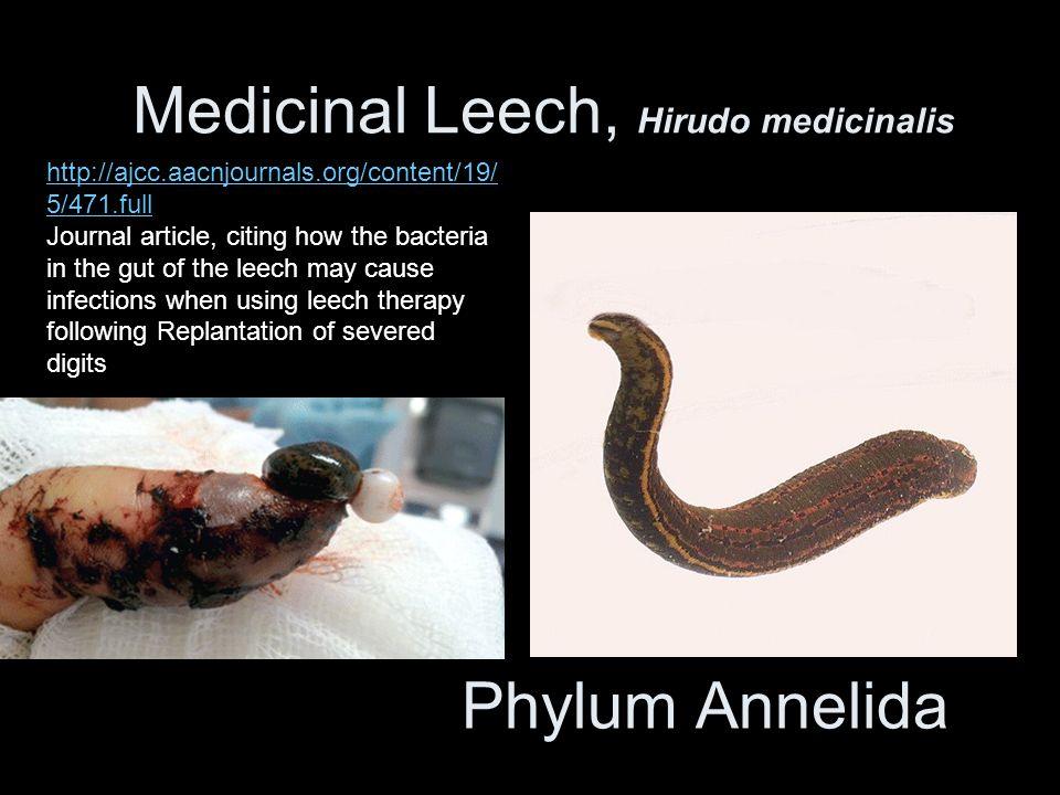 Medicinal Leech, Hirudo medicinalis