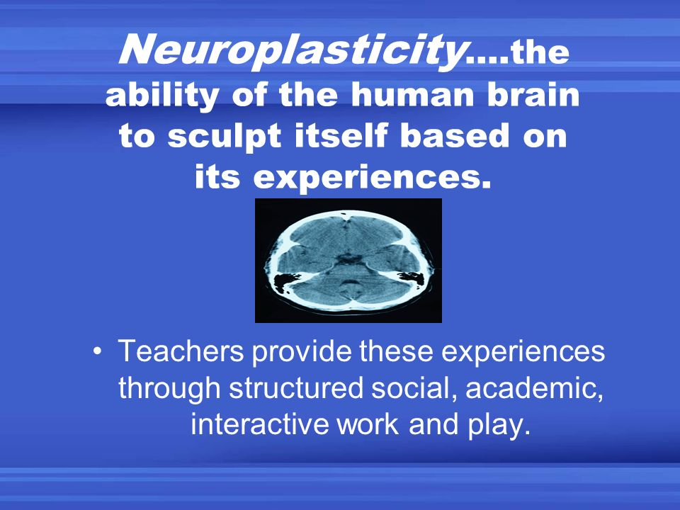 Neuroplasticity….the ability of the human brain to sculpt itself based on its experiences.
