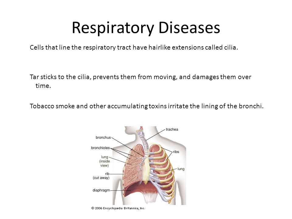 Respiratory Diseases Cells that line the respiratory tract have hairlike extensions called cilia.