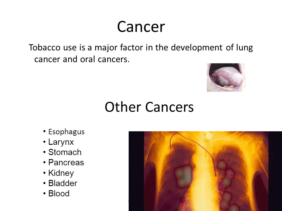 CancerTobacco use is a major factor in the development of lung cancer and oral cancers. Other Cancers.
