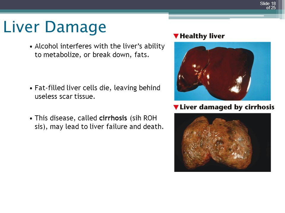 Liver Damage Alcohol interferes with the liver's ability to metabolize, or break down, fats.