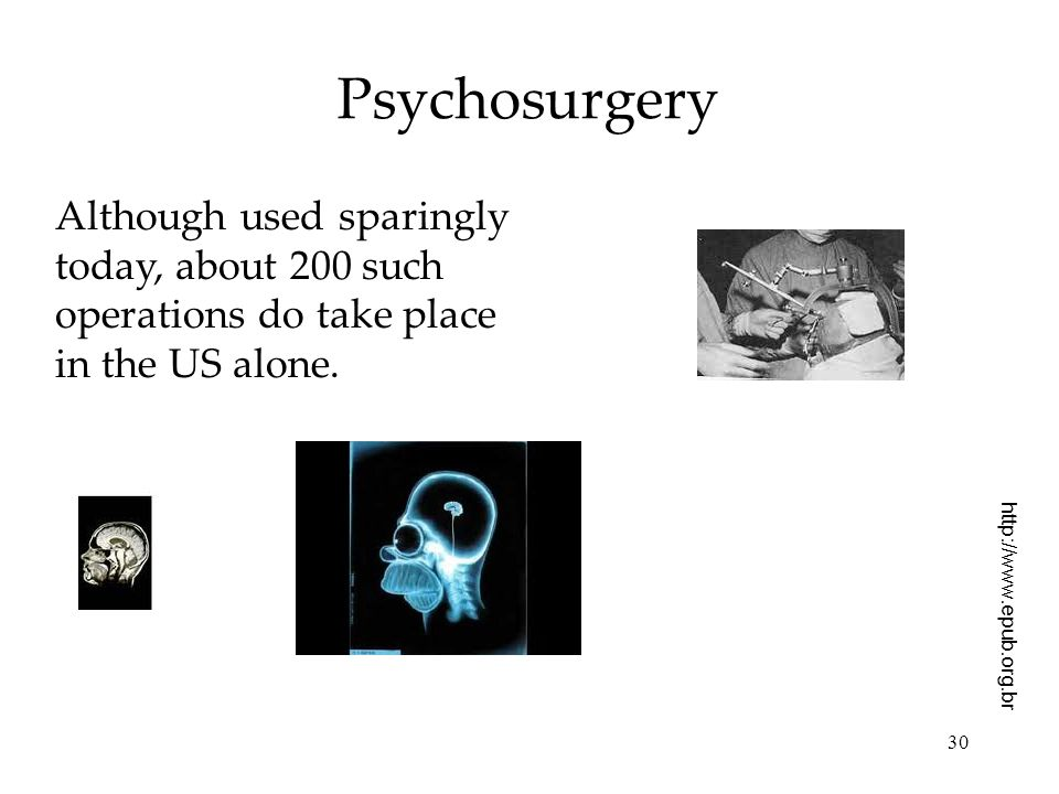 Psychosurgery Although used sparingly today, about 200 such operations do take place in the US alone.