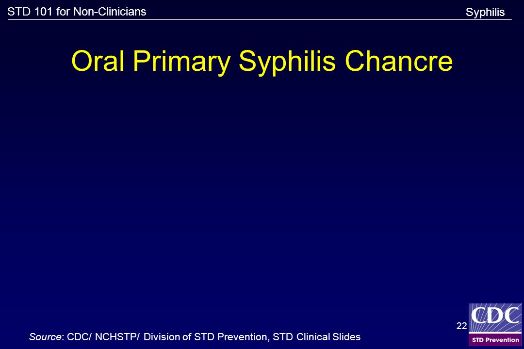 Oral Primary Syphilis Chancre