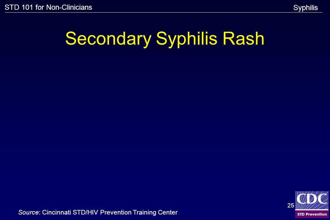 Secondary Syphilis Rash