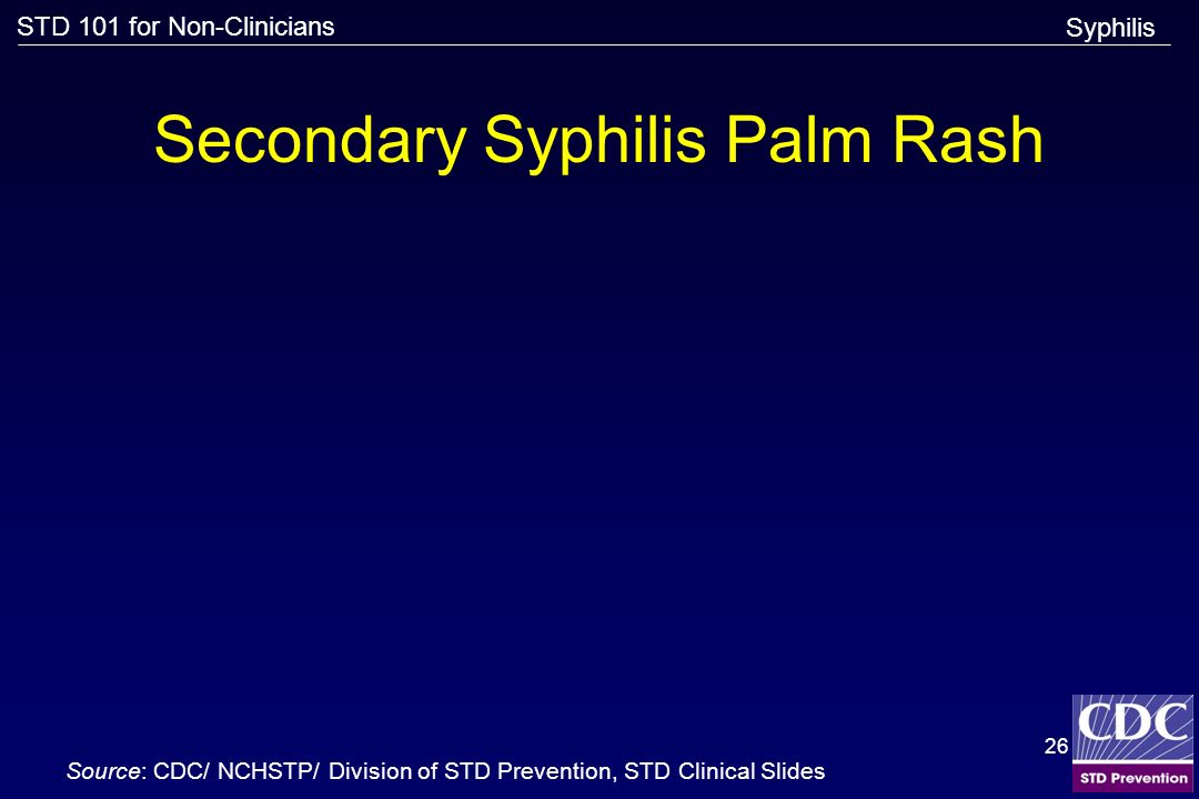 Secondary Syphilis Palm Rash