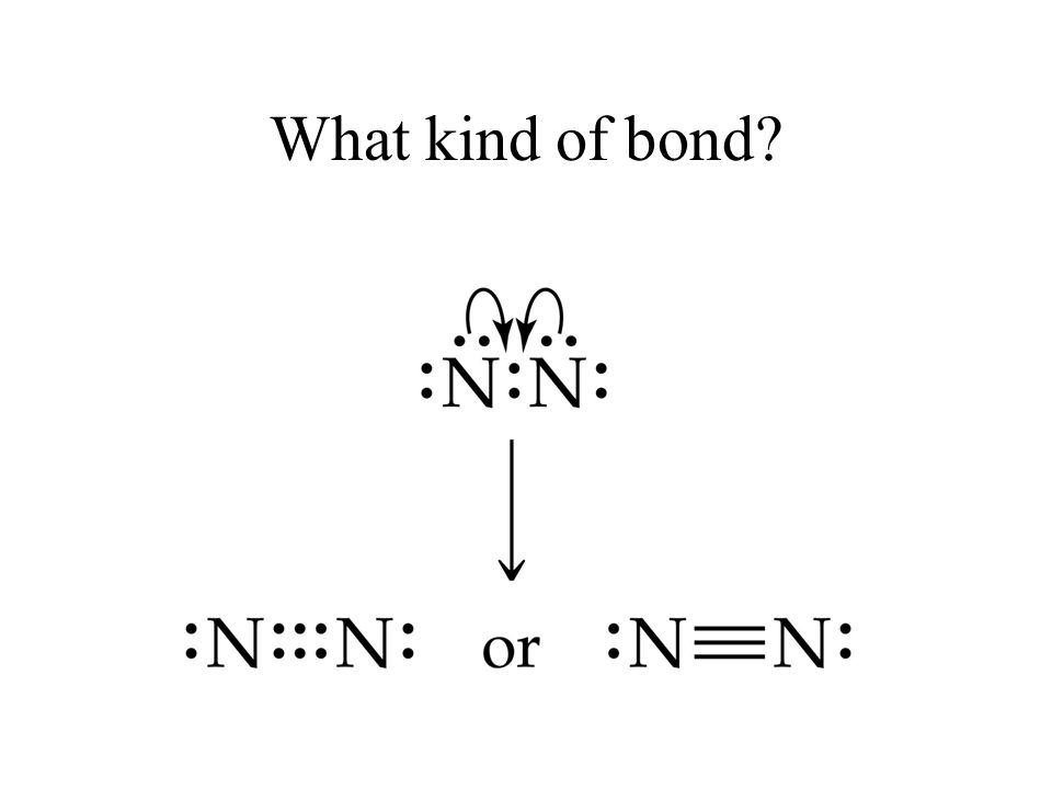 What kind of bond