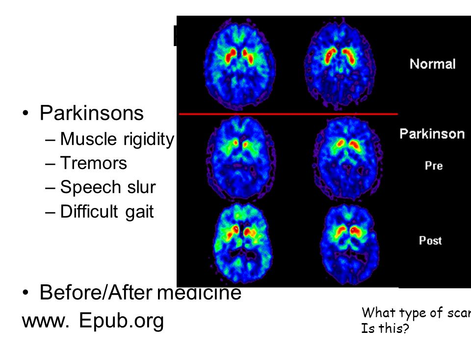 PET scan Parkinsons Before/After medicine www. Epub.org