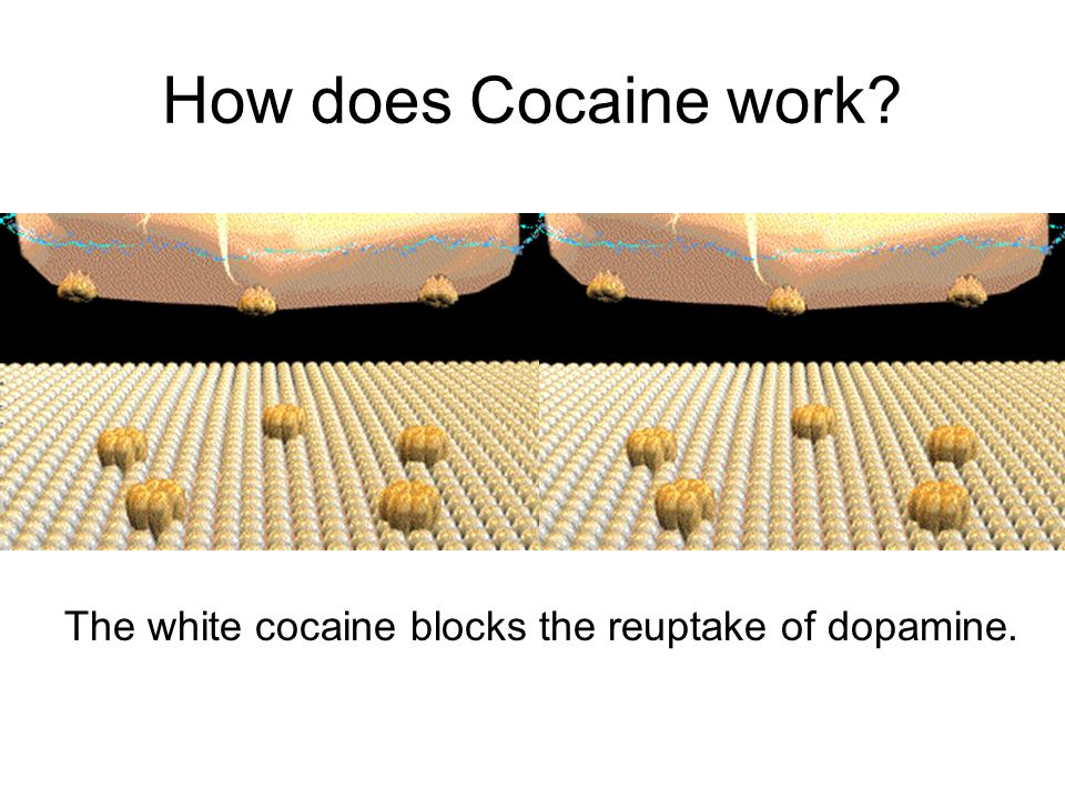 How does Cocaine work The white cocaine blocks the reuptake of dopamine.
