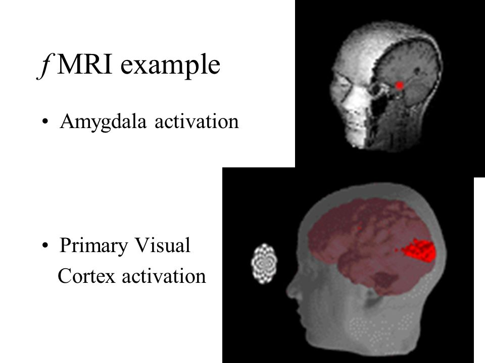 f MRI example Amygdala activation Primary Visual Cortex activation