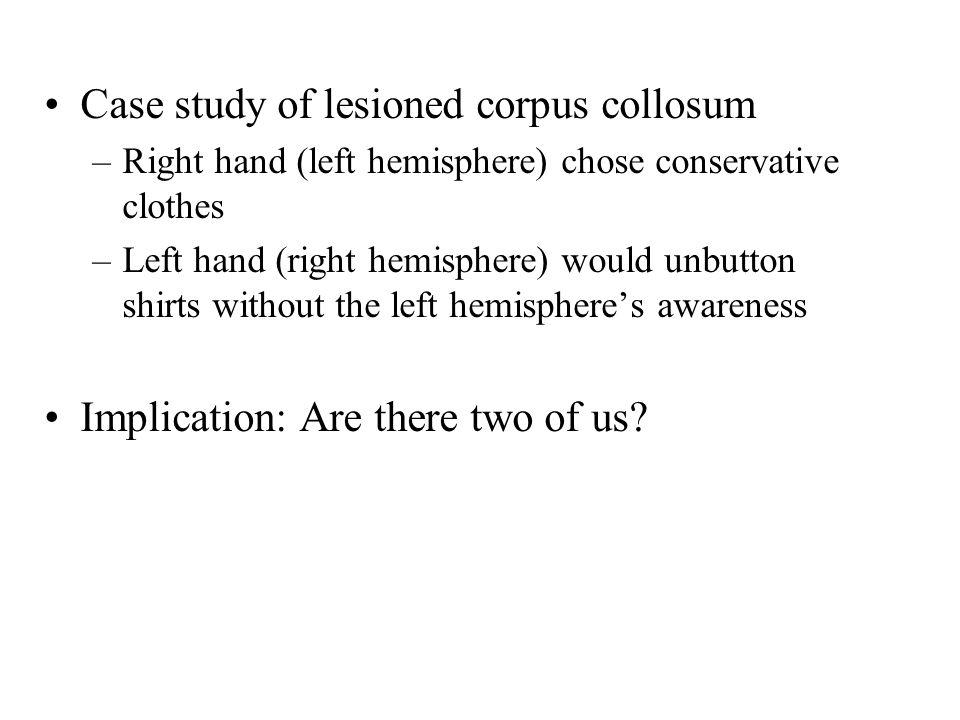 Case study of lesioned corpus collosum