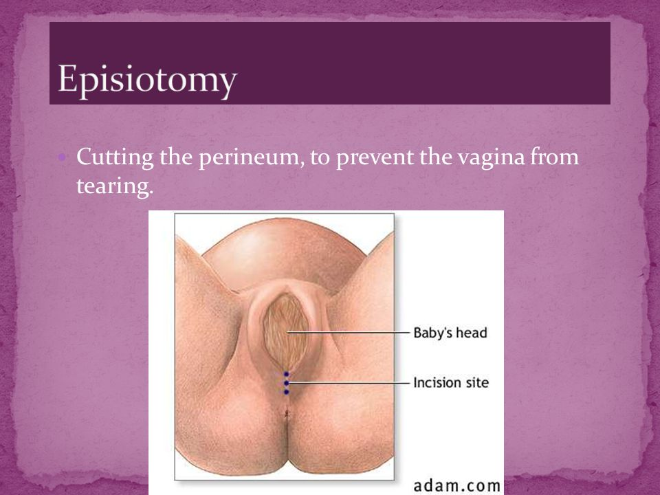 Episiotomy Cutting the perineum, to prevent the vagina from tearing.