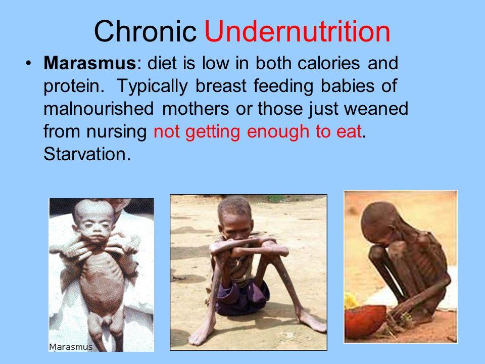Chronic Undernutrition