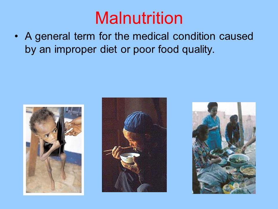 MalnutritionA general term for the medical condition caused by an improper diet or poor food quality.
