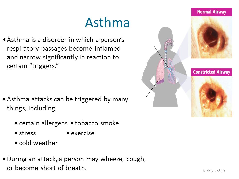 AsthmaAsthma is a disorder in which a person's respiratory passages become inflamed and narrow significantly in reaction to certain triggers.