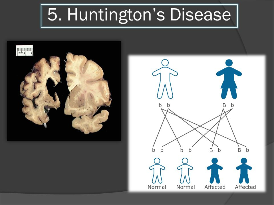 5. Huntington's Disease