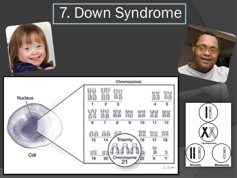 7. Down Syndrome