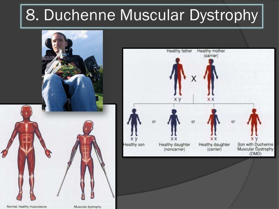 8. Duchenne Muscular Dystrophy