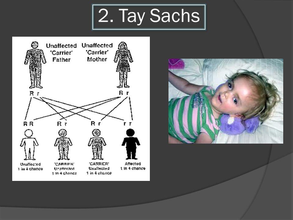 2. Tay Sachs