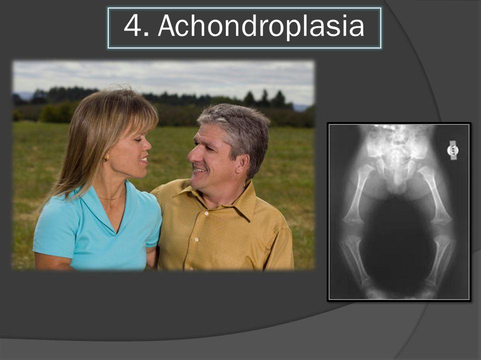4. Achondroplasia
