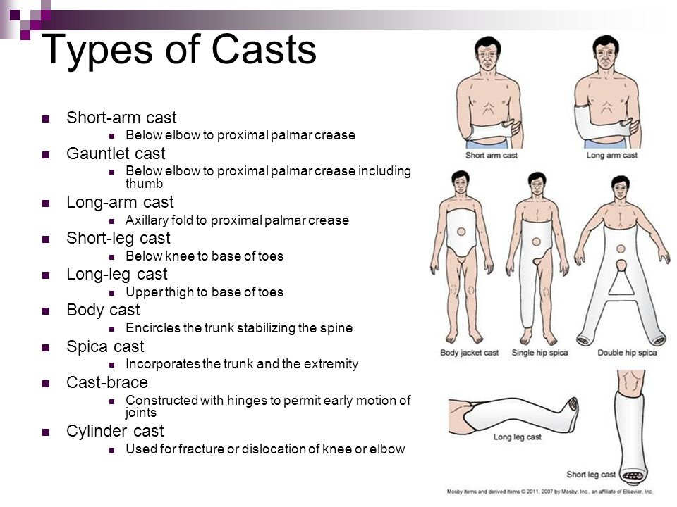 types of actors Cast is a temporary immobilization types: plaster fiber glass function to promote healing and early weight bearing to support, maintain and protect realigned bone.