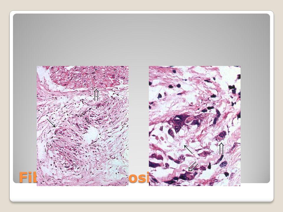 Fibrinoid necrosis