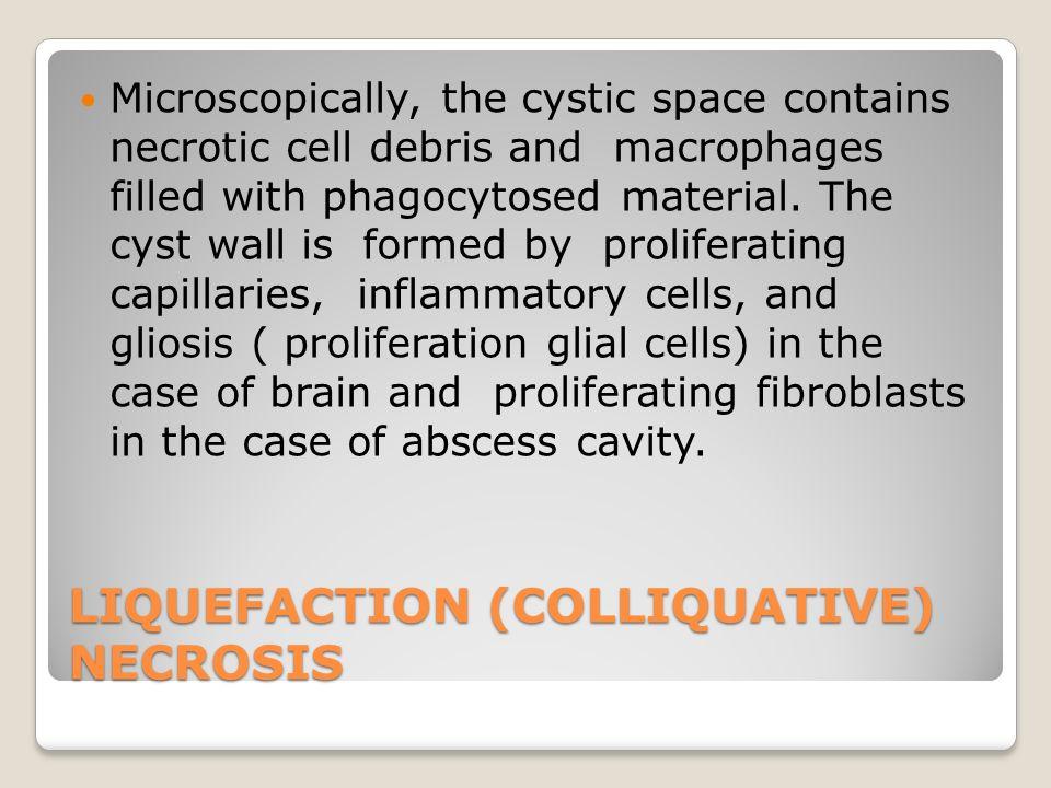 LIQUEFACTION (COLLIQUATIVE) NECROSIS