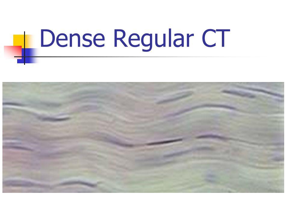 Dense Regular CT
