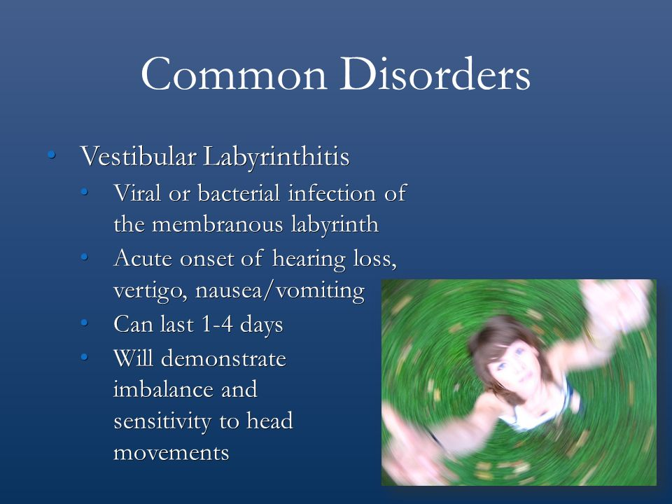 sudden onset hearing loss steroids