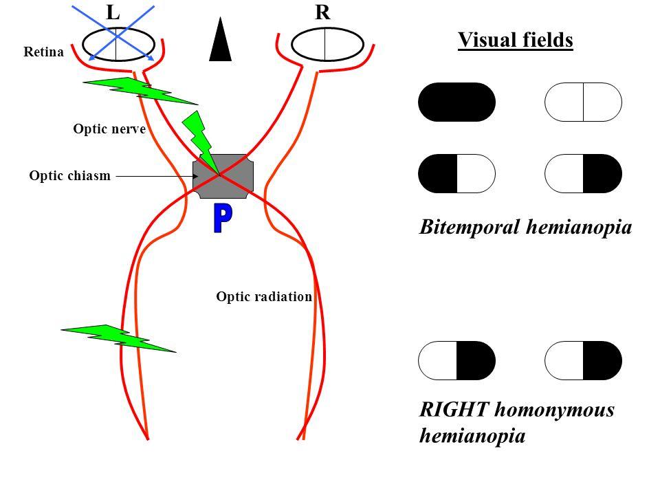 Demystifying the neurology examination - ppt video online ...