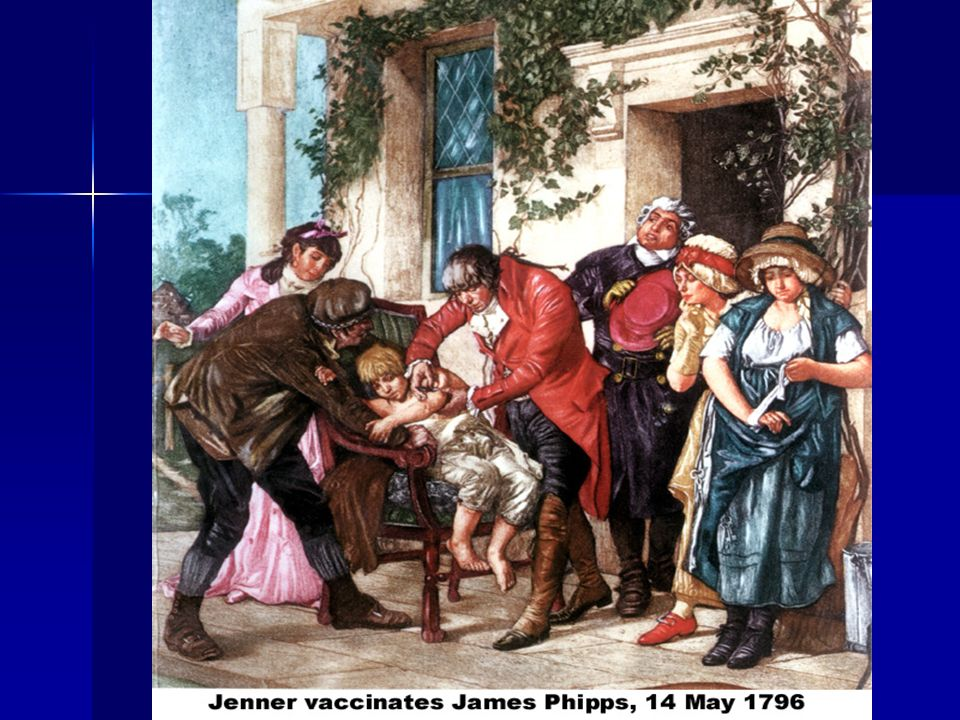 Jenner transferred matter from the hand of an infected dairymaid to 8 year-old James Phipps on 14 May 1796.