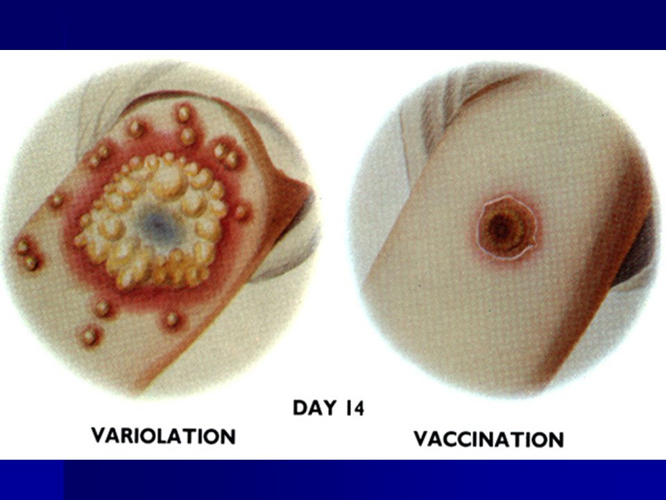 Compare the results of variolation with vaccination.