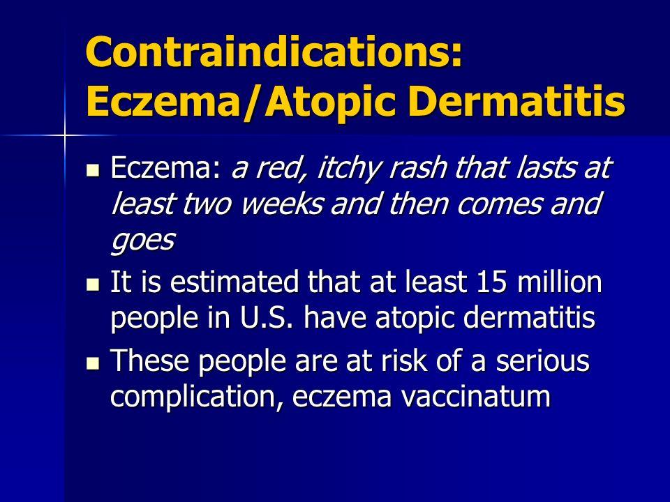 Contraindications: Eczema/Atopic Dermatitis