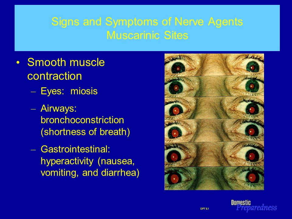 Signs and Symptoms of Nerve Agents Muscarinic Sites