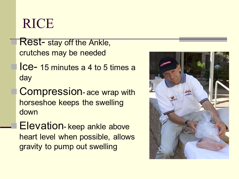 RICE Rest- stay off the Ankle, crutches may be needed