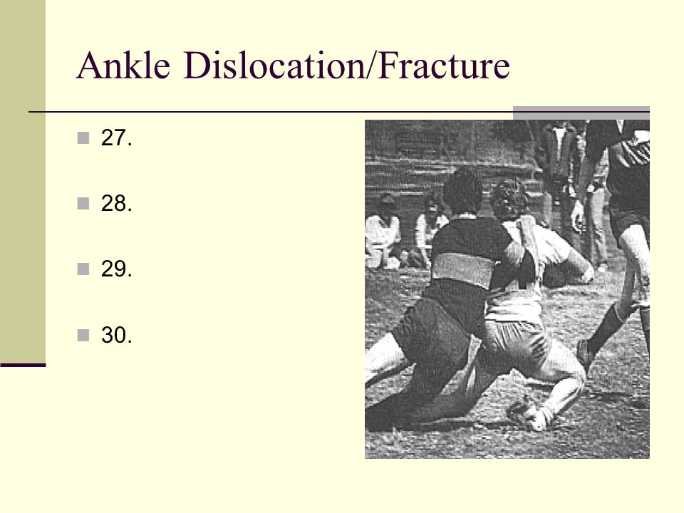 Ankle Dislocation/Fracture