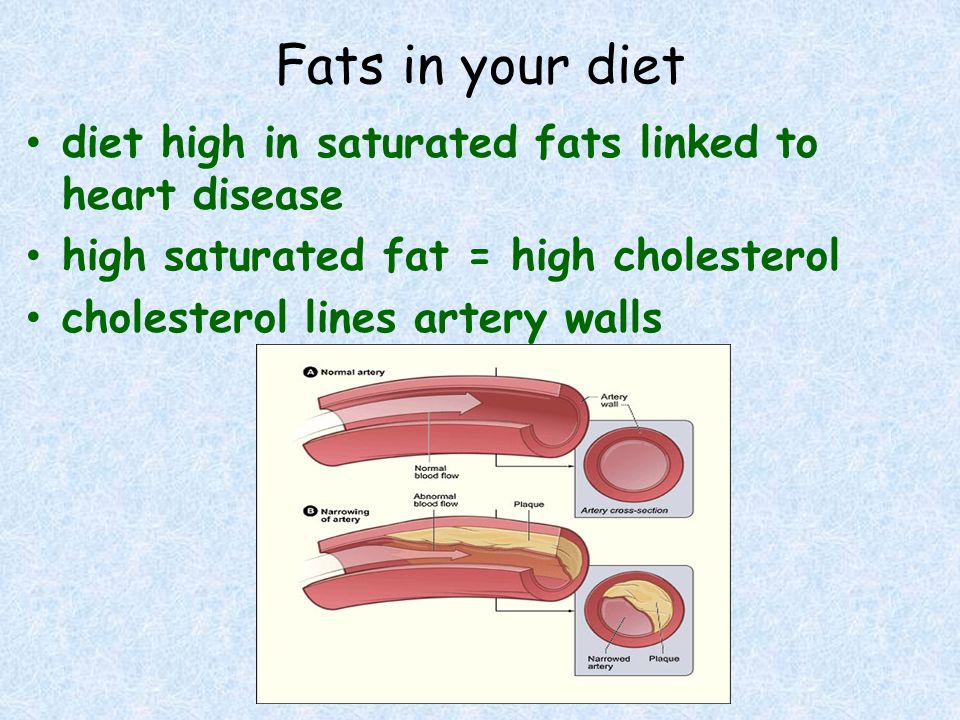 Fats in your diet diet high in saturated fats linked to heart disease