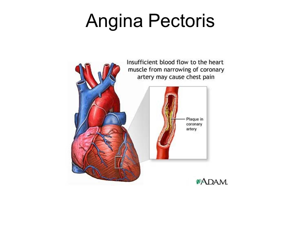 Heart angina causes