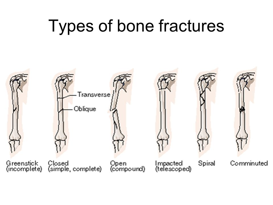 Types of Fractures Based on Different Classifications